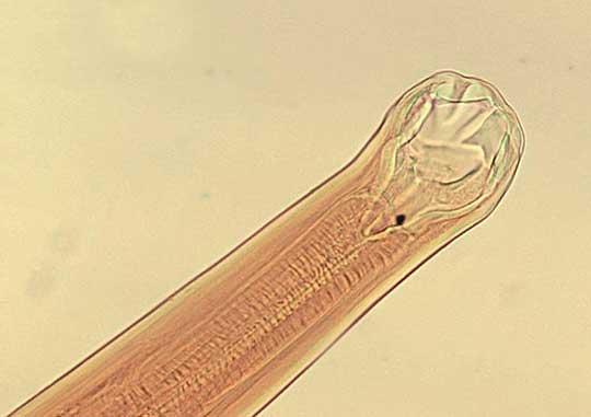 Анализы на паразитов в кишечнике