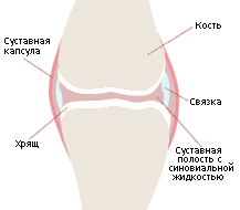 саркома локтевого сустава симптомы и лечение