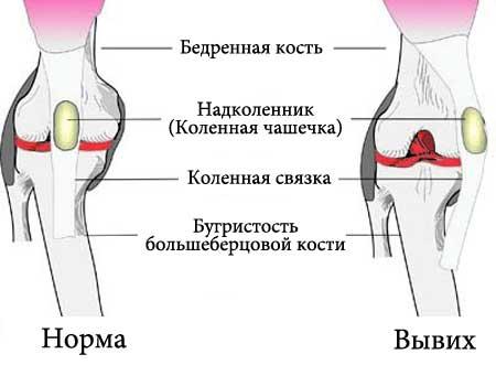 Вывих коленного сустава у кошки болят суставы ног какие упражнения по методу бубновского